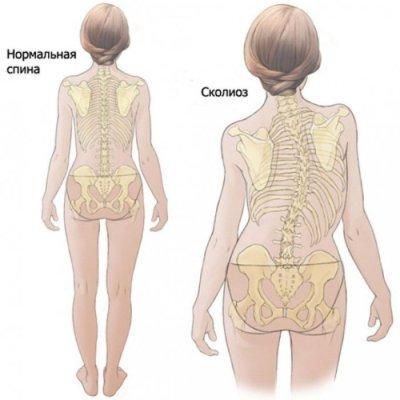 Нормальная спина и сколиоз