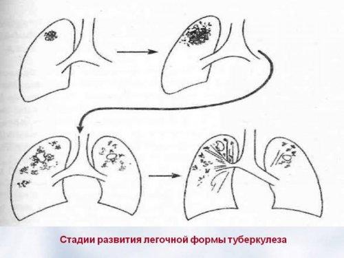 Как дают инвалидность при туберкулезе легких thumbnail
