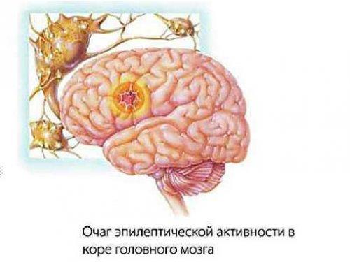 Очаг активности в мозге